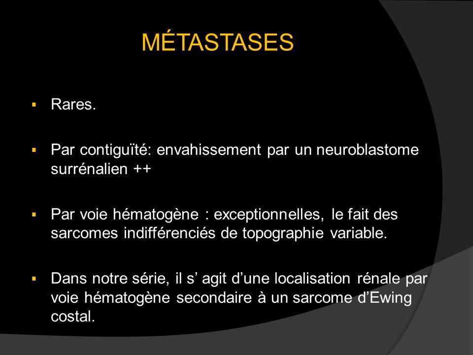 MÉTASTASES Rares. Par contiguïté: envahissement par un neuroblastome surrénalien ++