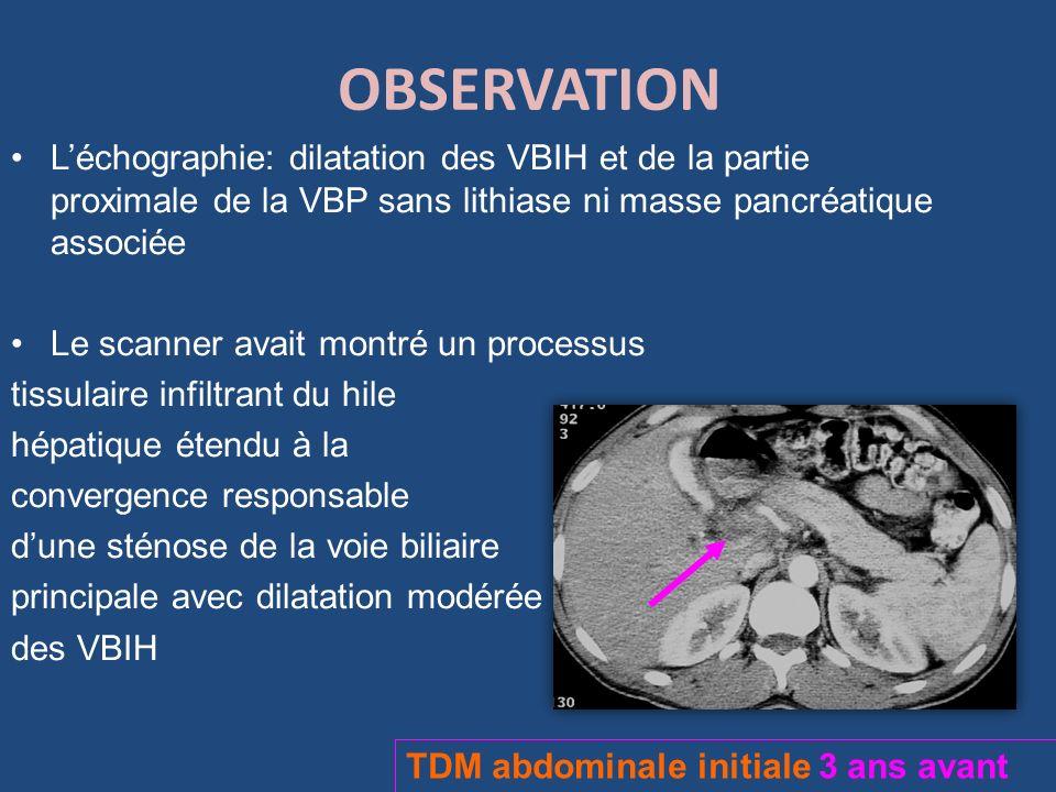 OBSERVATION L'échographie: dilatation des VBIH et de la partie proximale de la VBP sans lithiase ni masse pancréatique associée.