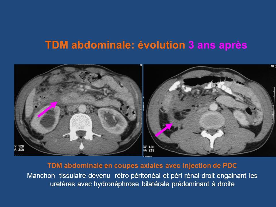 TDM abdominale en coupes axiales avec injection de PDC