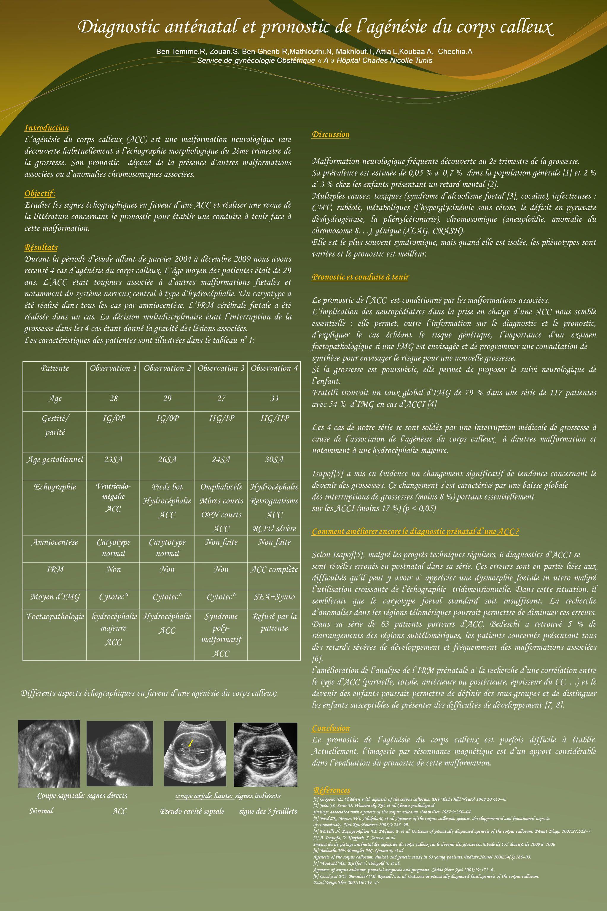 Diagnostic anténatal et pronostic de l'agénésie du corps calleux