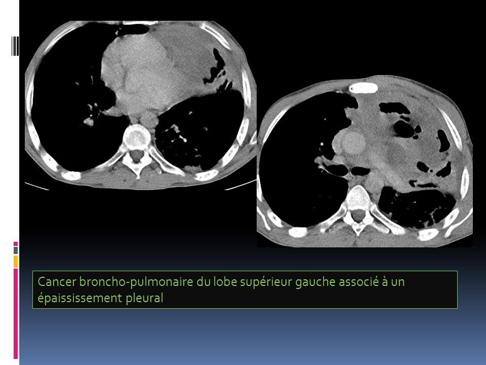Cancer broncho-pulmonaire du lobe supérieur gauche associé à un épaississement pleural