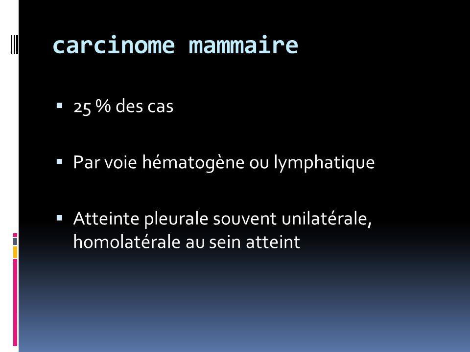 carcinome mammaire 25 % des cas Par voie hématogène ou lymphatique