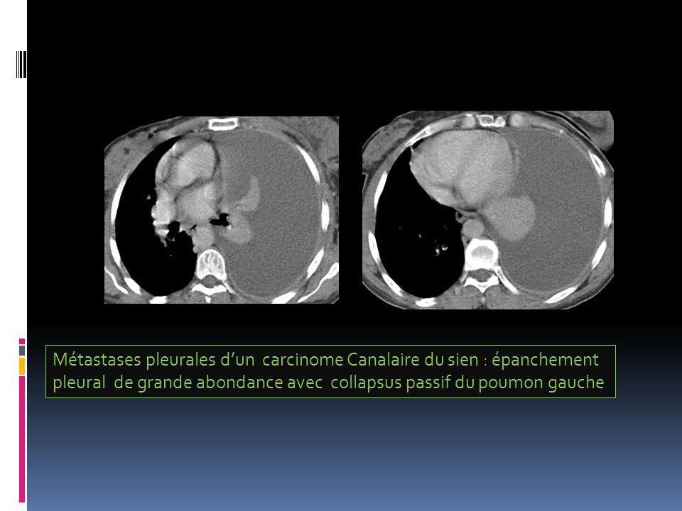 Métastases pleurales d'un carcinome Canalaire du sien : épanchement
