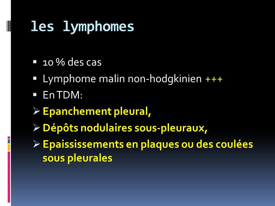 les lymphomes 10 % des cas Lymphome malin non-hodgkinien +++ En TDM: