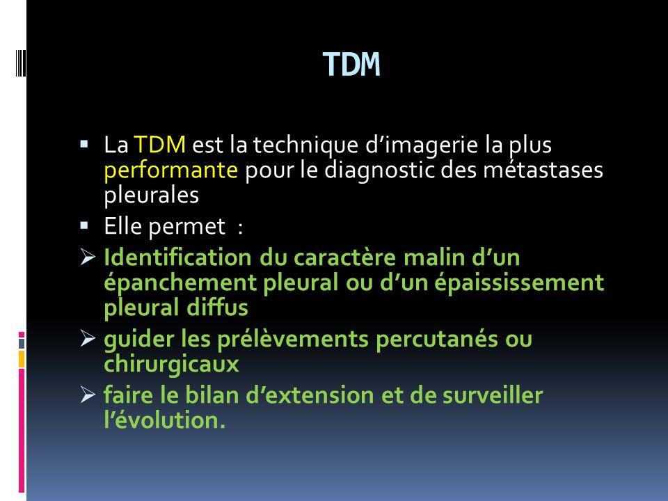 TDM La TDM est la technique d'imagerie la plus performante pour le diagnostic des métastases pleurales.