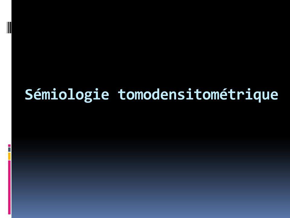 Sémiologie tomodensitométrique