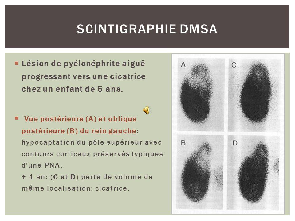 SCINTIGRAPHIE DMSA Lésion de pyélonéphrite aiguë progressant vers une cicatrice chez un enfant de 5 ans.