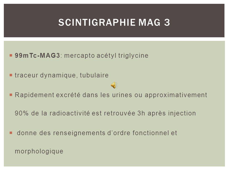 SCINTIGRAPHIE MAG 3 99mTc-MAG3: mercapto acétyl triglycine