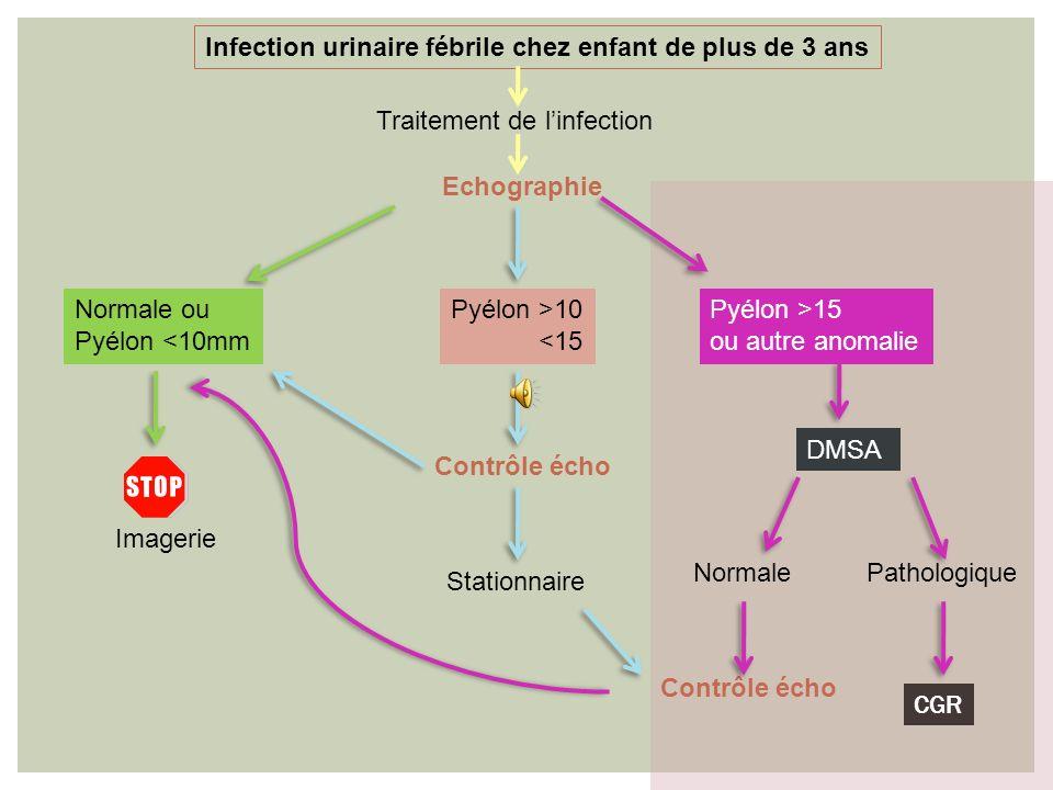 Infection urinaire fébrile chez enfant de plus de 3 ans