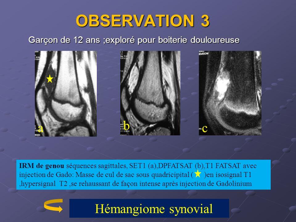 OBSERVATION 3 Garçon de 12 ans ;exploré pour boiterie douloureuse. b. a. c.