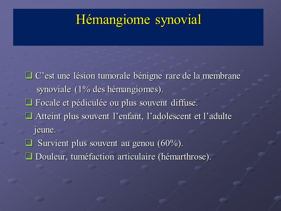 Hémangiome synovial C'est une lésion tumorale bénigne rare de la membrane. synoviale (1% des hémangiomes).