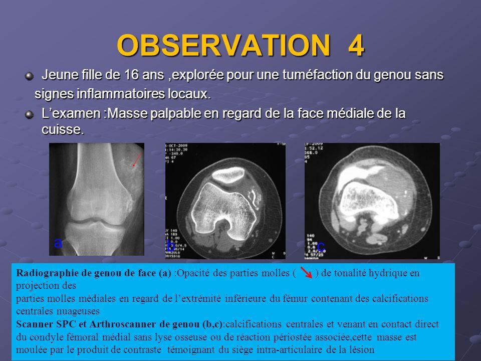 OBSERVATION 4 Jeune fille de 16 ans ,explorée pour une tuméfaction du genou sans. signes inflammatoires locaux.