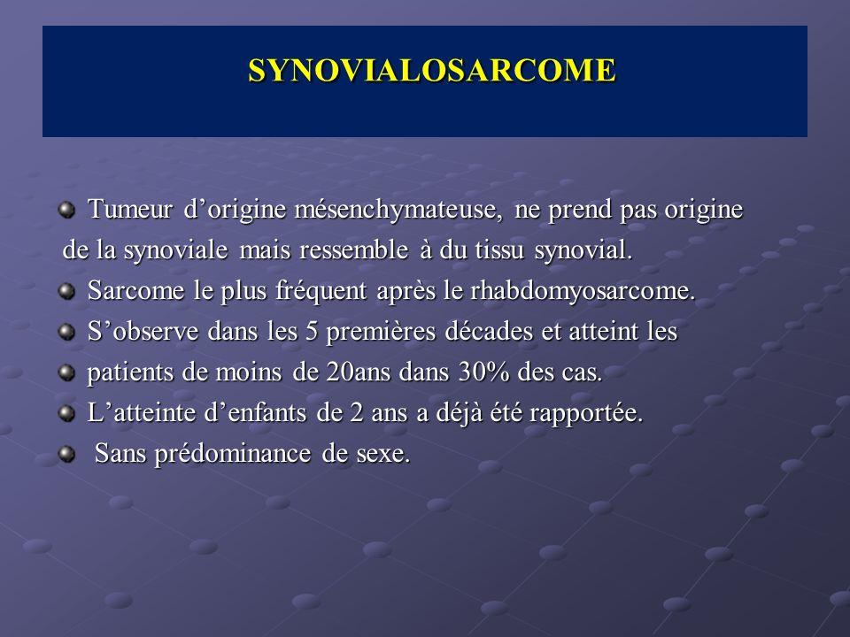 SYNOVIALOSARCOME Tumeur d'origine mésenchymateuse, ne prend pas origine. de la synoviale mais ressemble à du tissu synovial.