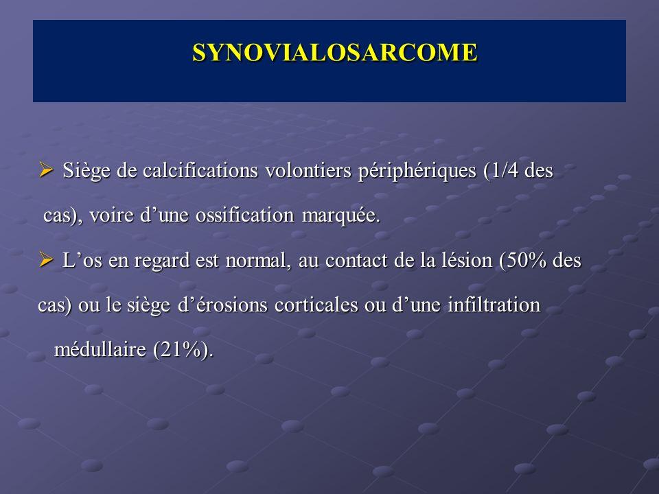 SYNOVIALOSARCOME Siège de calcifications volontiers périphériques (1/4 des. cas), voire d'une ossification marquée.