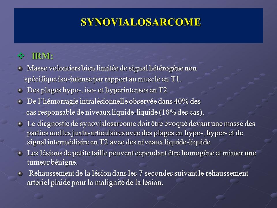 SYNOVIALOSARCOME IRM:
