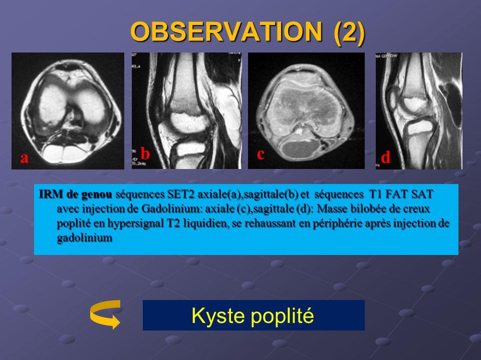 OBSERVATION (2) b. c. a. d.