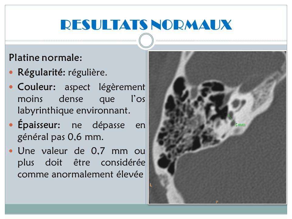 RESULTATS NORMAUX Platine normale: Régularité: régulière.