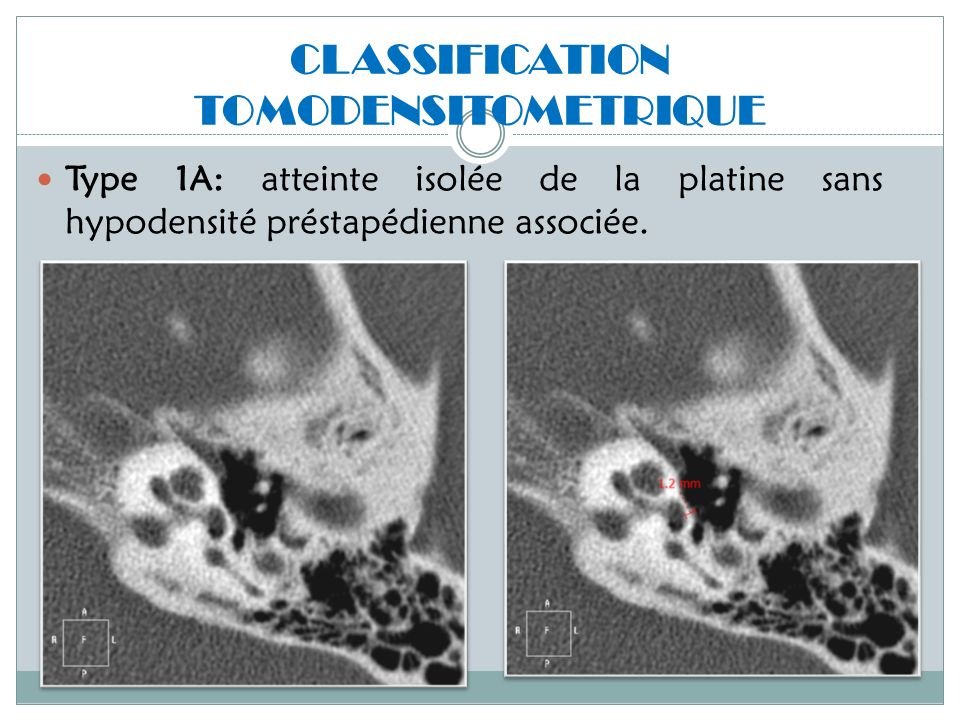 CLASSIFICATION TOMODENSITOMETRIQUE