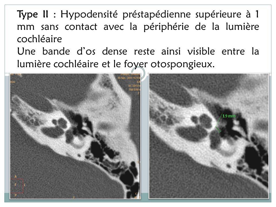 Type II : Hypodensité préstapédienne supérieure à 1 mm sans contact avec la périphérie de la lumière cochléaire .