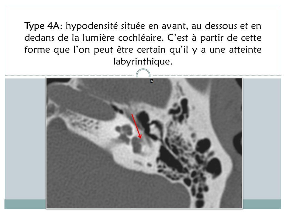 Type 4A: hypodensité située en avant, au dessous et en dedans de la lumière cochléaire.