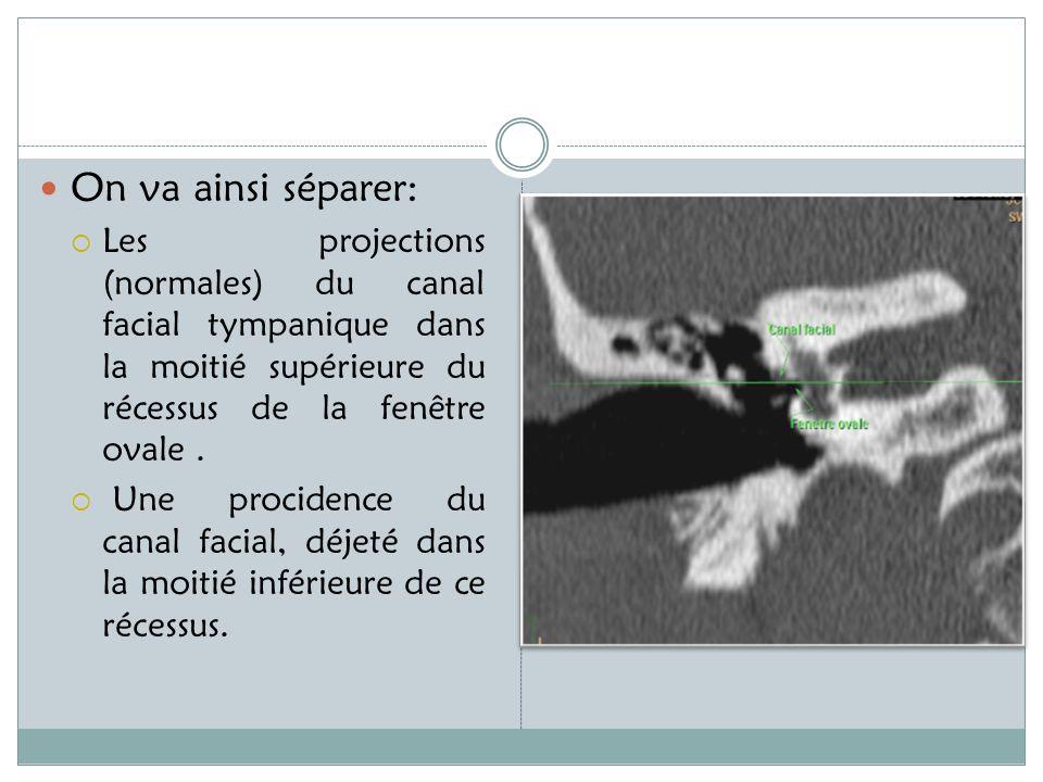 On va ainsi séparer: Les projections (normales) du canal facial tympanique dans la moitié supérieure du récessus de la fenêtre ovale .
