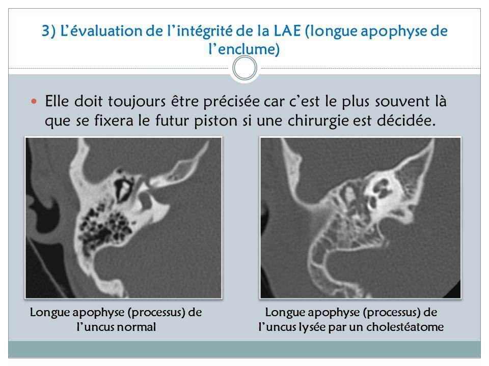 3) L'évaluation de l'intégrité de la LAE (longue apophyse de l'enclume)