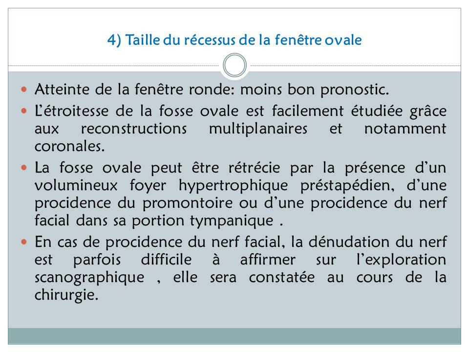4) Taille du récessus de la fenêtre ovale