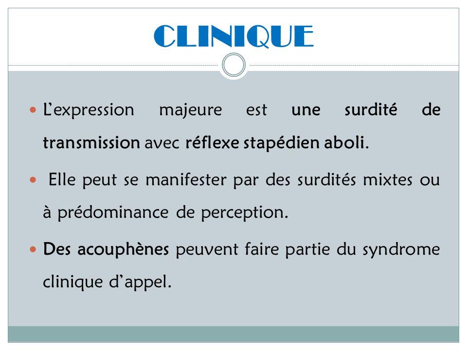 CLINIQUE L'expression majeure est une surdité de transmission avec réflexe stapédien aboli.