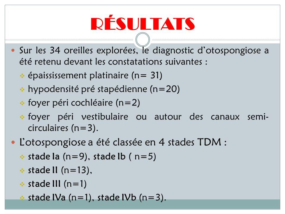 RÉSULTATS L'otospongiose a été classée en 4 stades TDM :