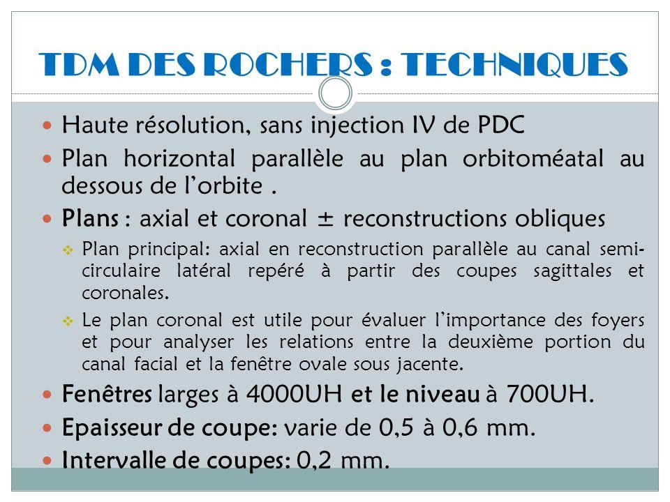 TDM DES ROCHERS : TECHNIQUES