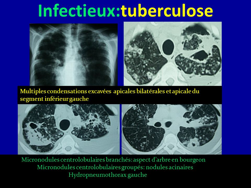 Infectieux:tuberculose