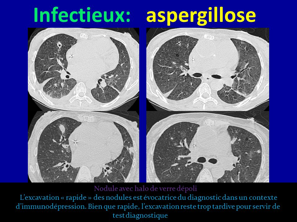 Infectieux: aspergillose