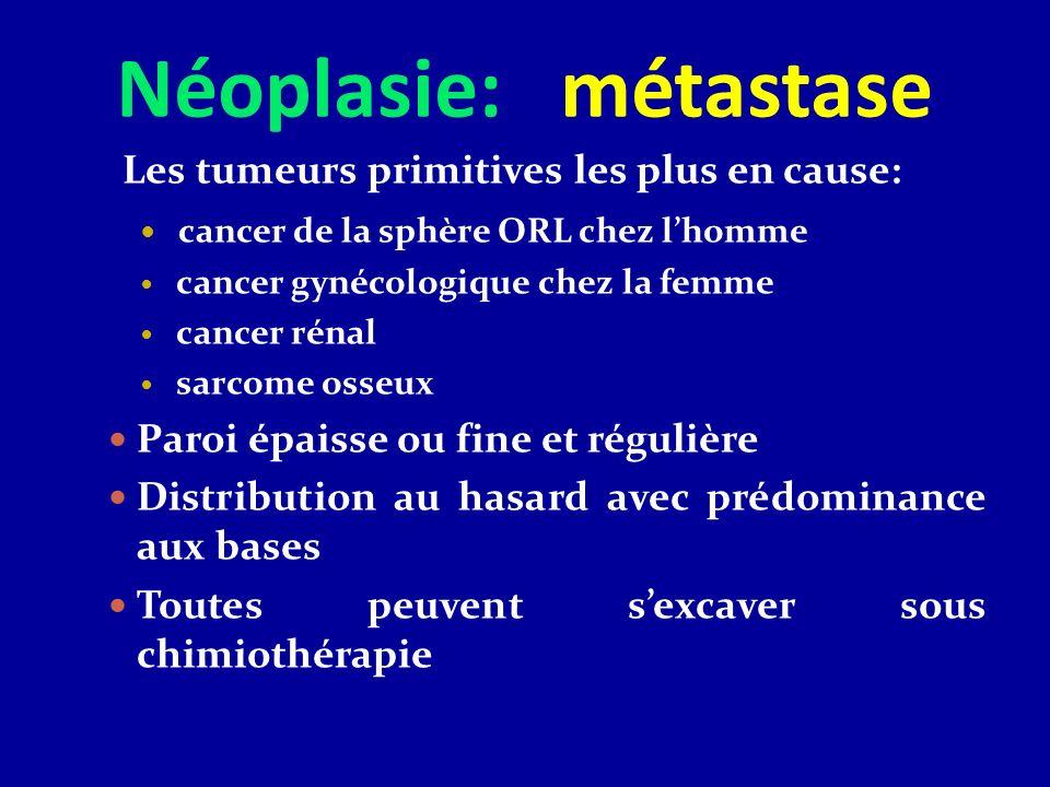 Néoplasie: métastase Les tumeurs primitives les plus en cause: