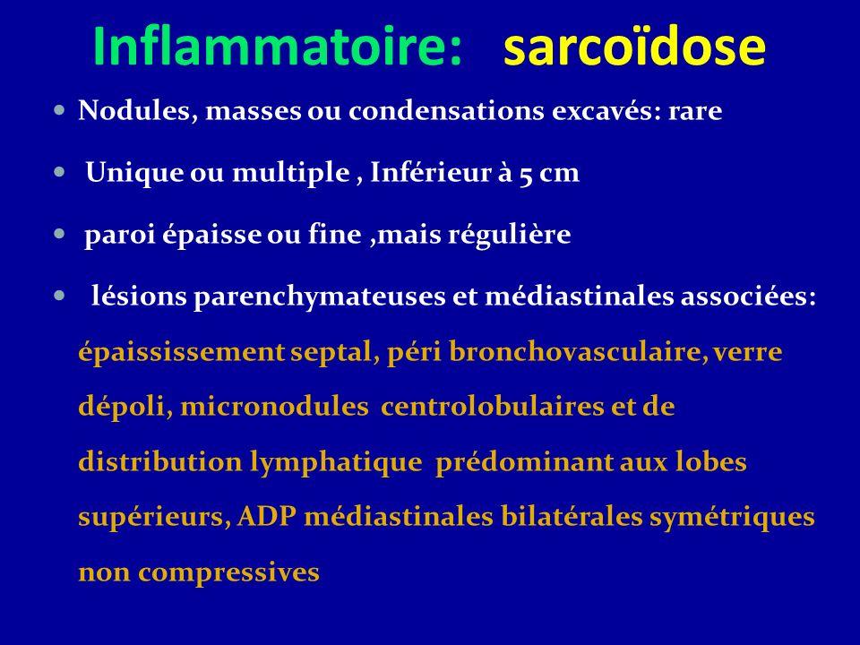 Inflammatoire: sarcoïdose