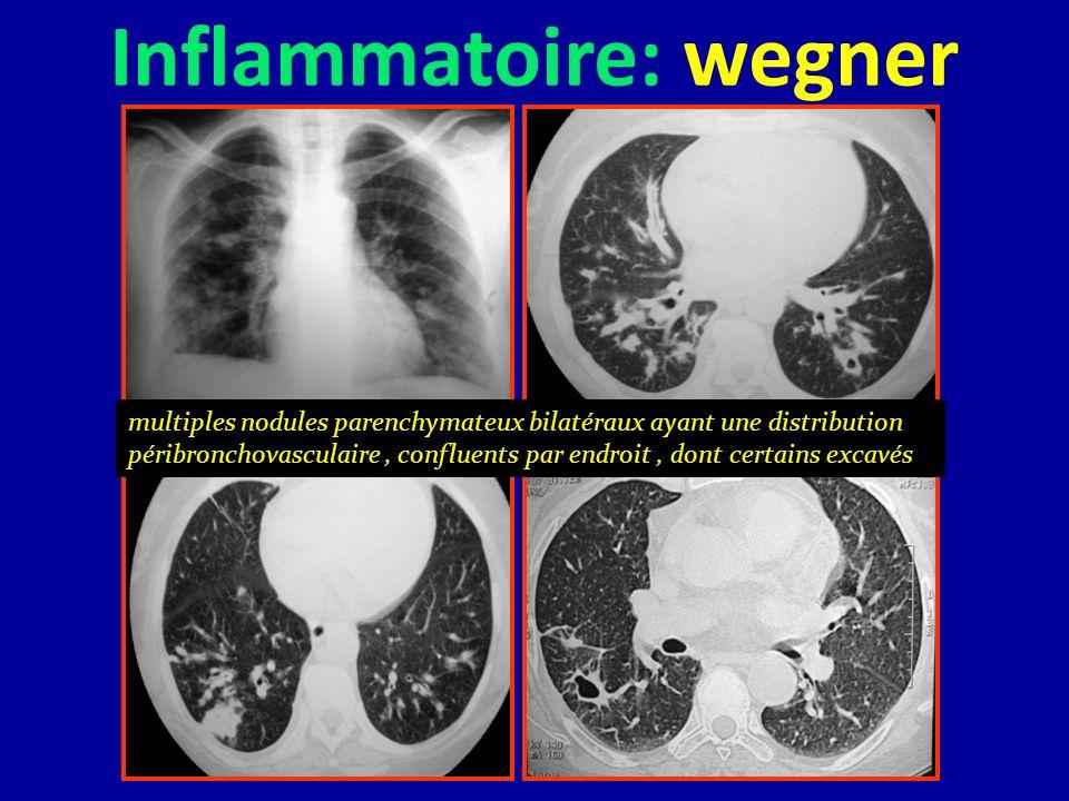 Inflammatoire: wegner