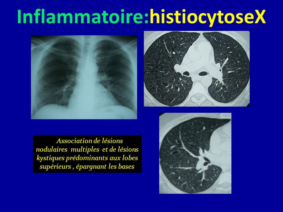 Inflammatoire:histiocytoseX