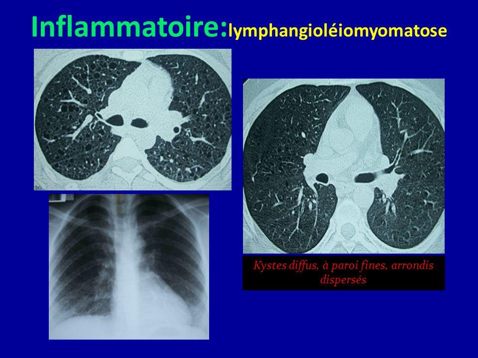 Inflammatoire:lymphangioléiomyomatose