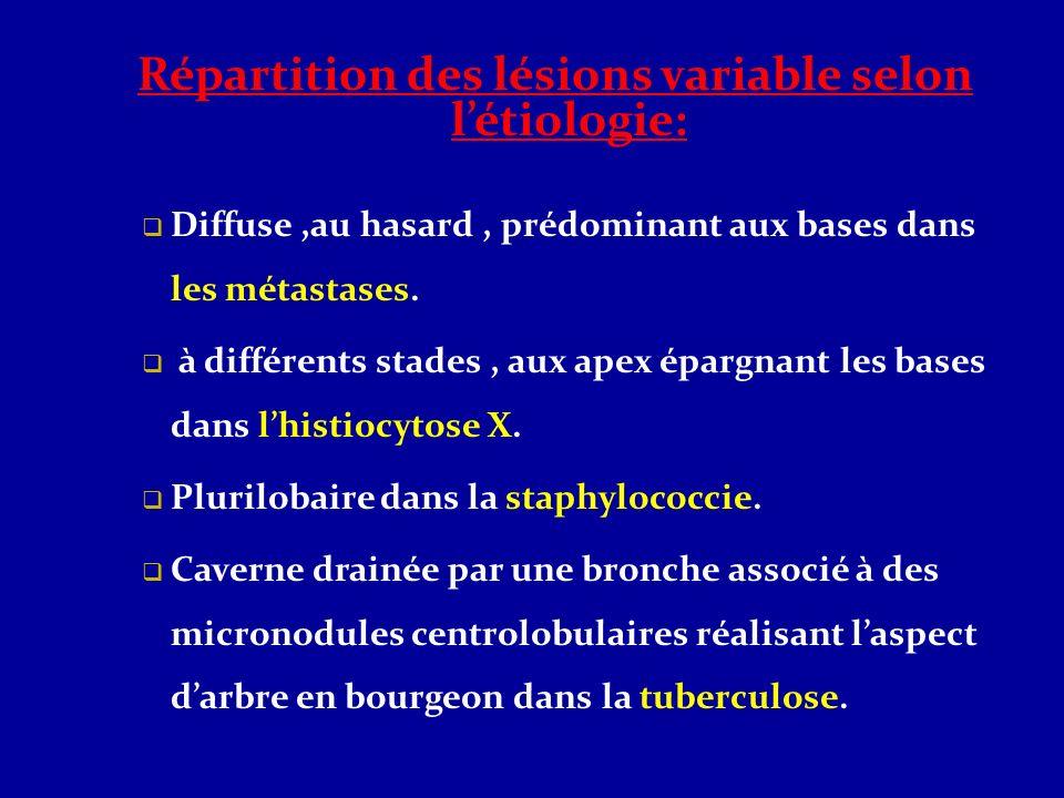 Répartition des lésions variable selon l'étiologie: