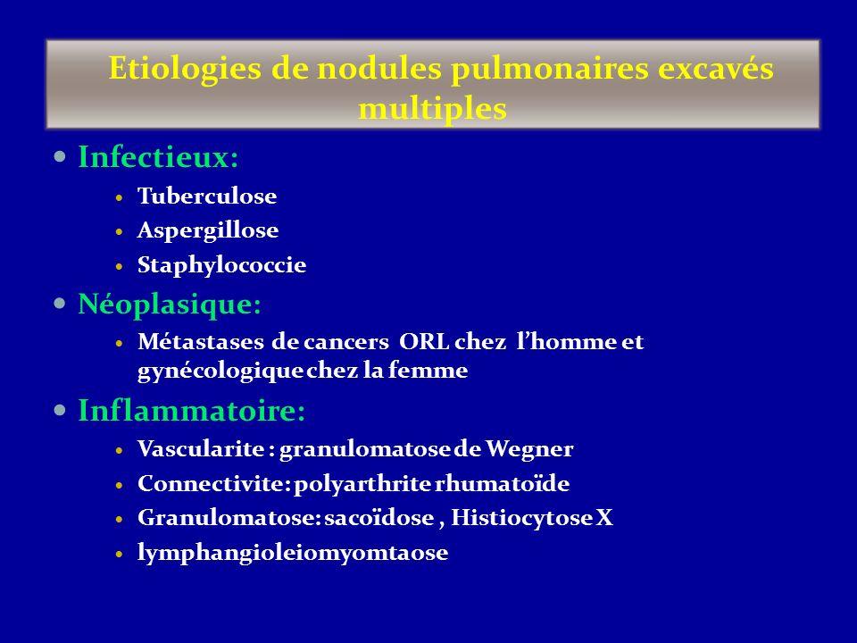 Etiologies de nodules pulmonaires excavés multiples
