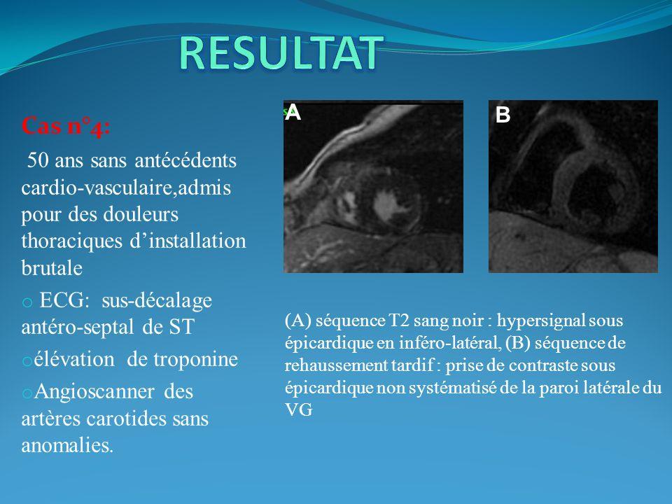 RESULTAT A. B. Cas n°4: 50 ans sans antécédents cardio-vasculaire,admis pour des douleurs thoraciques d'installation brutale.