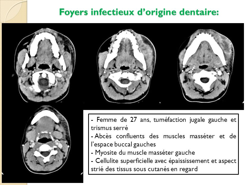 Foyers infectieux d'origine dentaire: