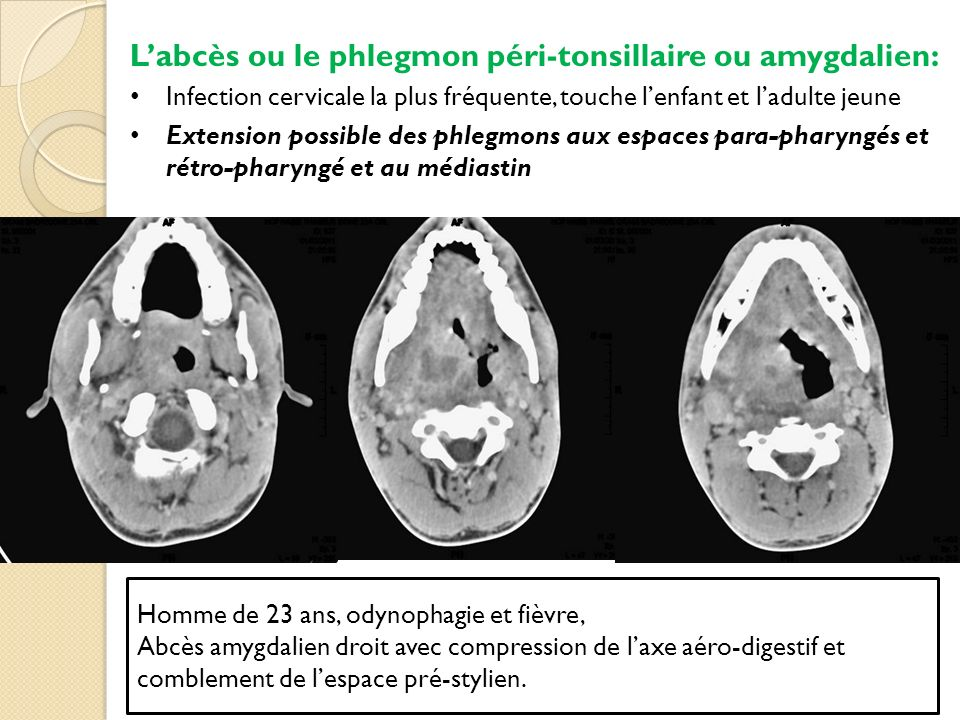 L'abcès ou le phlegmon péri-tonsillaire ou amygdalien: