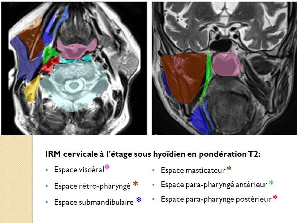 IRM cervicale à l'étage sous hyoïdien en pondération T2: