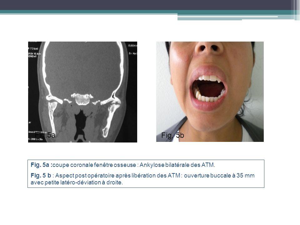 Fig.5a Fig. 5b. Fig. 5a :coupe coronale fenêtre osseuse : Ankylose bilatérale des ATM.