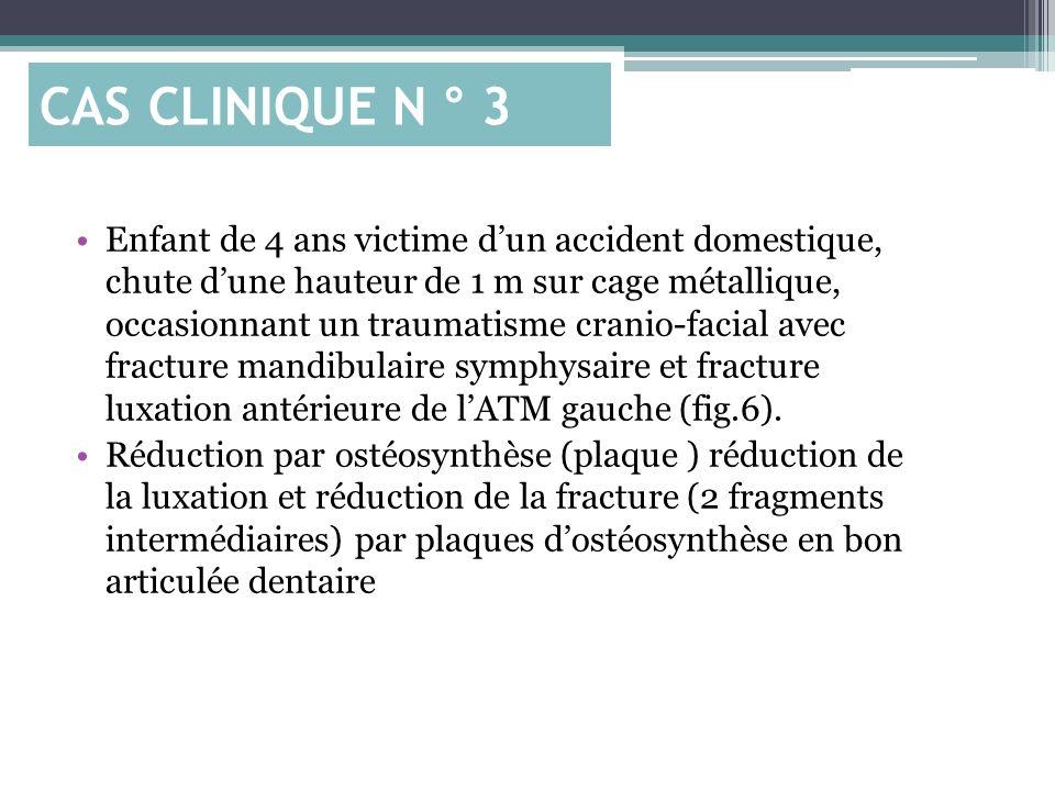 CAS CLINIQUE N ° 3
