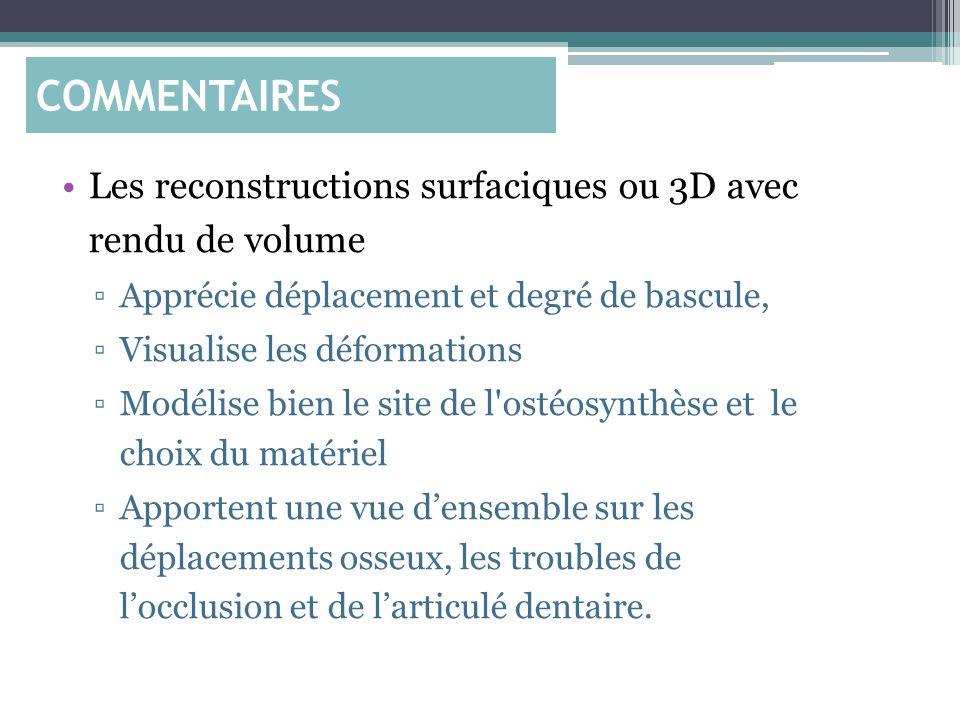COMMENTAIRES Les reconstructions surfaciques ou 3D avec rendu de volume. Apprécie déplacement et degré de bascule,