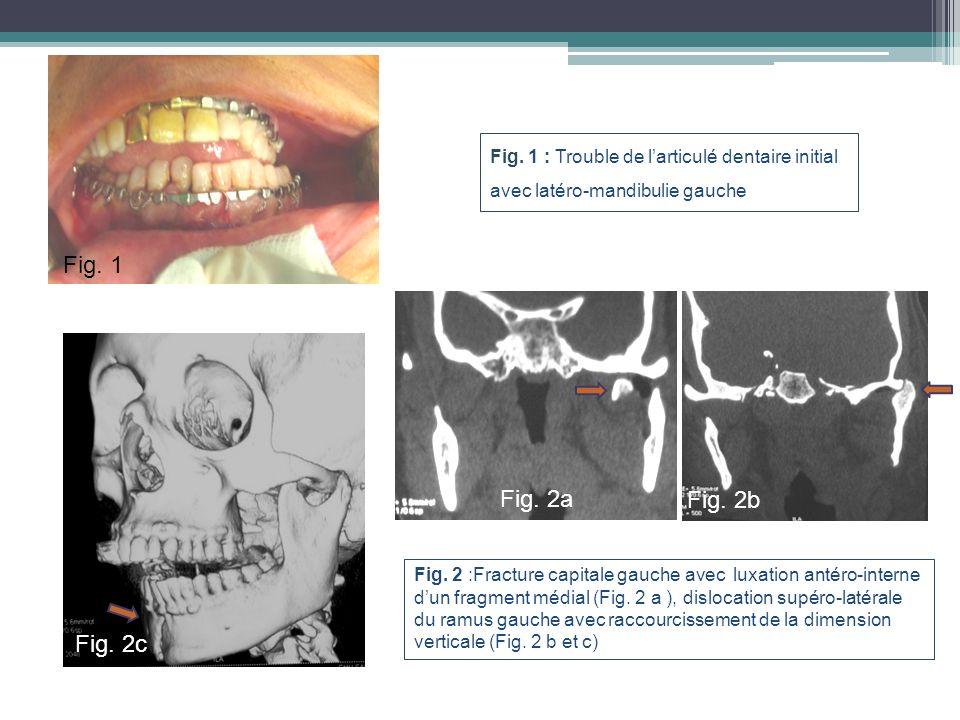 Fig. 1 : Trouble de l'articulé dentaire initial avec latéro-mandibulie gauche