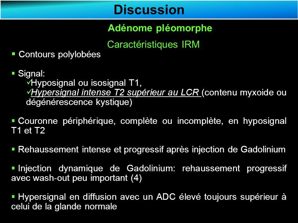 Discussion Adénome pléomorphe Caractéristiques IRM Contours polylobées