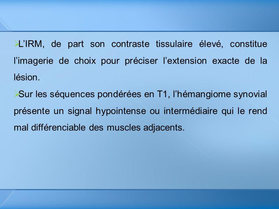 L'IRM, de part son contraste tissulaire élevé, constitue l'imagerie de choix pour préciser l'extension exacte de la lésion.
