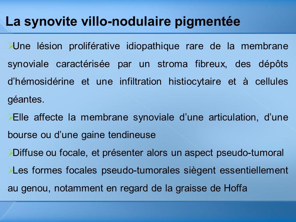 La synovite villo-nodulaire pigmentée